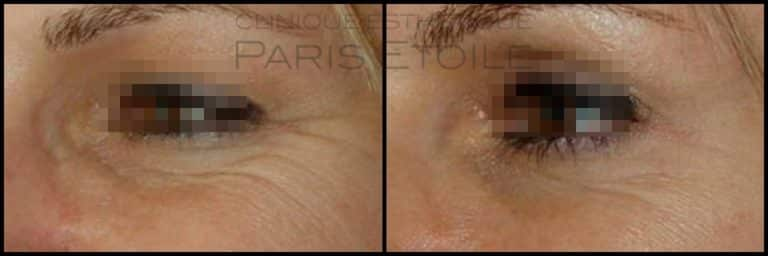 Injections: Toxine Botulique